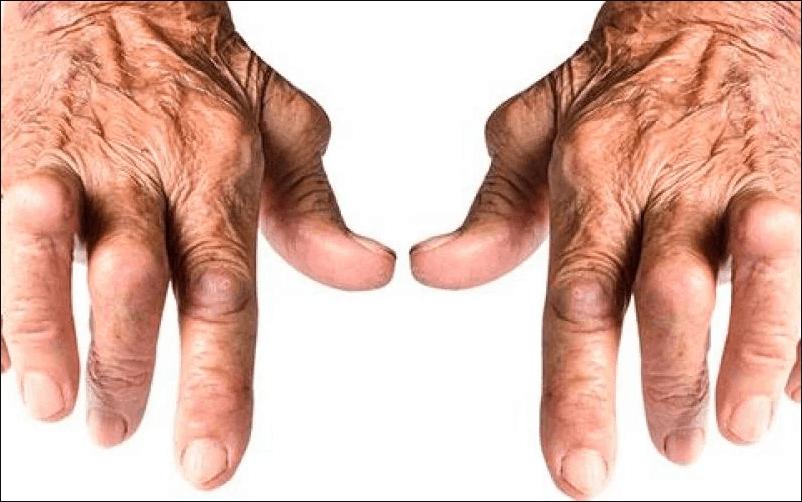 Artrite Reumatóide: Tudo o que você Precisa Saber